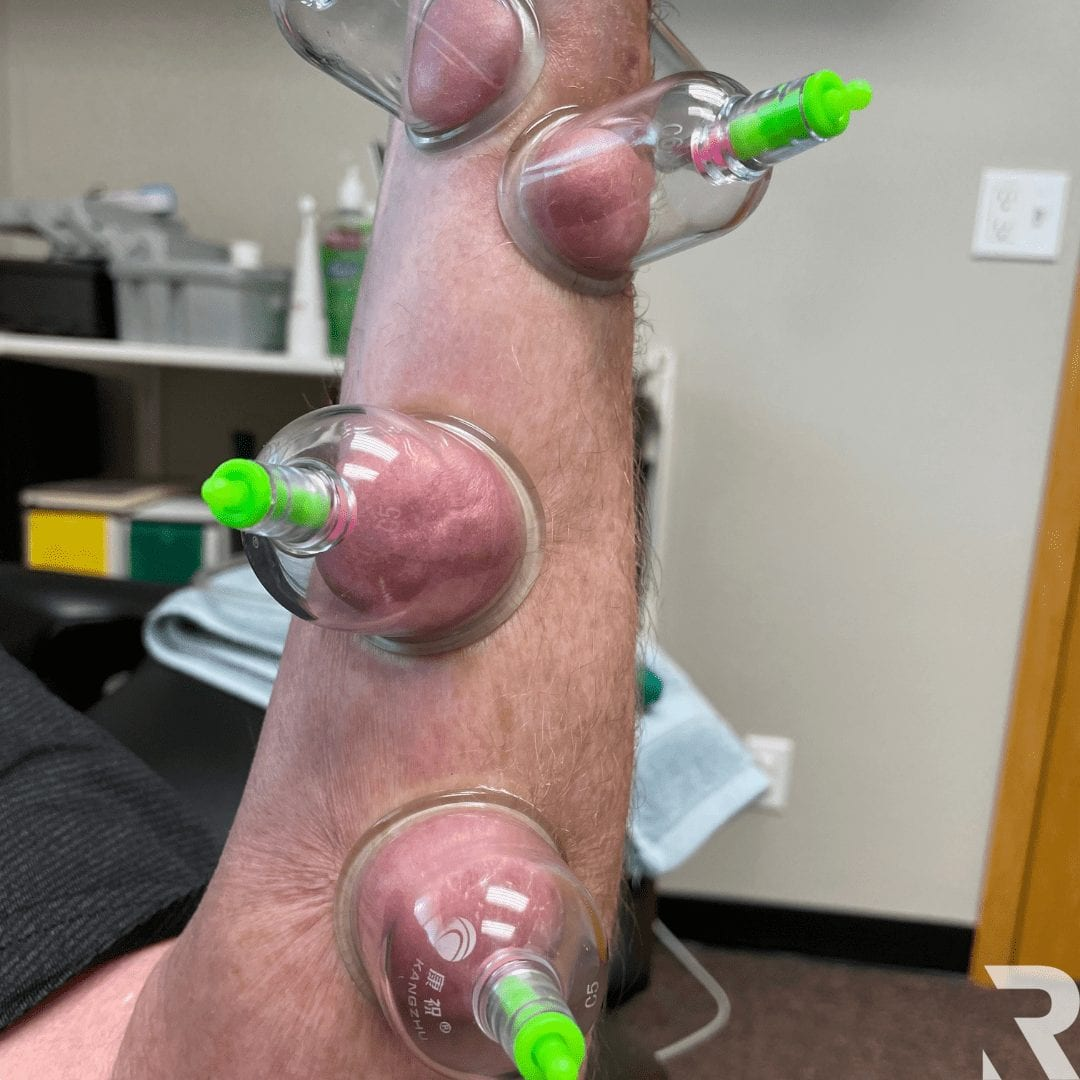 carpal tunnel cupping