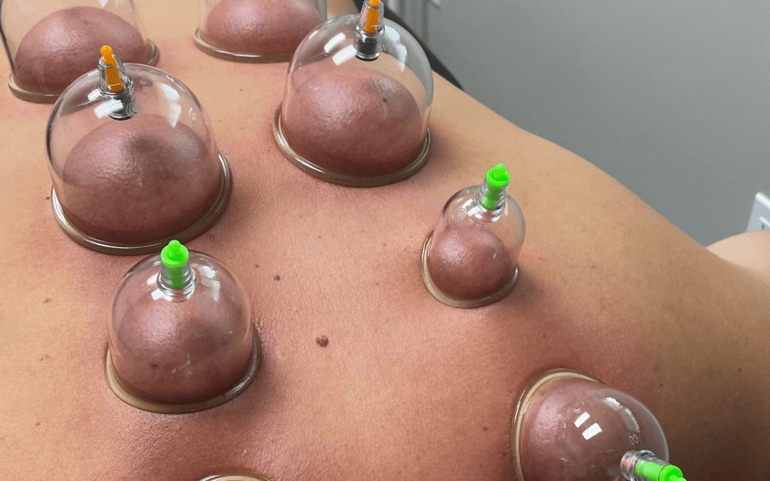 Cupping – What the Cup is it?